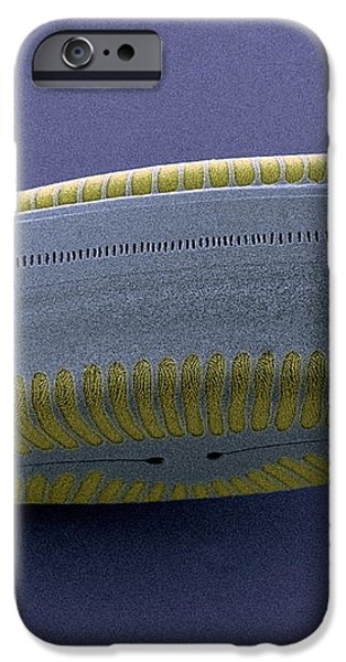 Diatom, Sem iPhone Case by Steve Gschmeissner