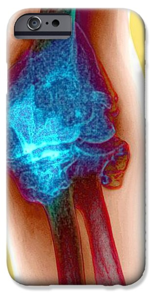 Disorder iPhone Cases - Arthritic Elbow, X-ray iPhone Case by Du Cane Medical Imaging Ltd