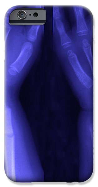 Broken Wrist iPhone Case by Ted Kinsman
