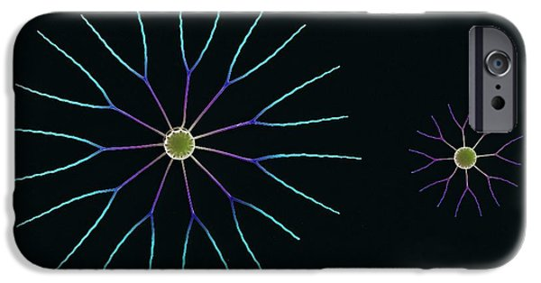 Radial Symmetry Photographs iPhone Cases - Diatom Algae, Sem iPhone Case by Steve Gschmeissner