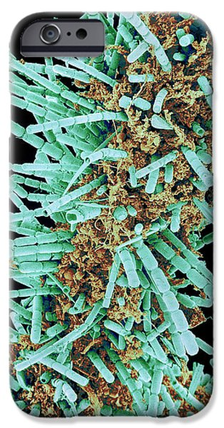 Diatoms, Sem iPhone Case by Susumu Nishinaga