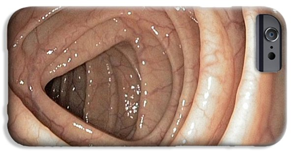 Endoscopy iPhone Cases - Healthy Colon, Large Intestine iPhone Case by Gastrolab