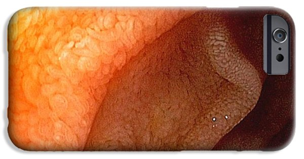Endoscope iPhone Cases - Healthy Duodenum iPhone Case by Gastrolab