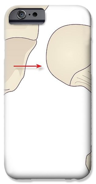Hip Replacement, Artwork iPhone Case by Peter Gardiner
