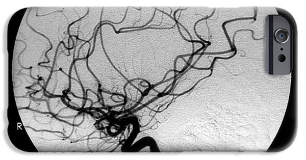 Abnormal iPhone Cases - Internal Carotid Cerebral Angiogram iPhone Case by Medical Body Scans