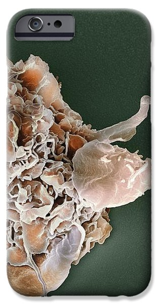 Macrophage Attacking A Foreign Body, Sem iPhone Case by
