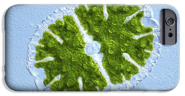 Desmid iPhone Cases - Microsterias Green Alga, Light Micrograph iPhone Case by Frank Fox