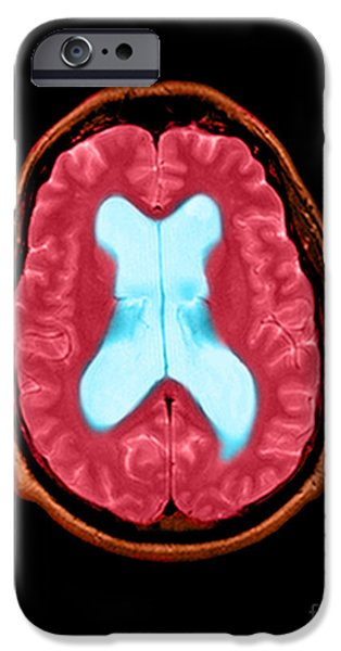 Abnormal iPhone Cases - Mri Communicating Hydrocephalus Nph iPhone Case by Medical Body Scans