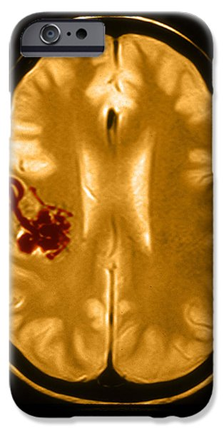 Abnormal iPhone Cases - Mri Of Arterial Venous Malformation iPhone Case by Medical Body Scans