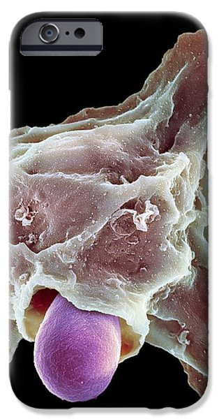 Neutrophil Engulfing Thrush Fungus, Sem iPhone Case by