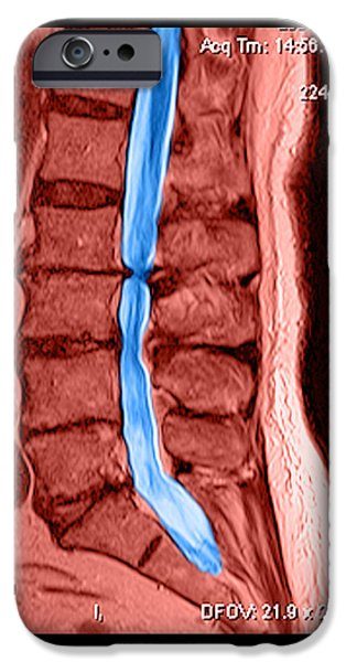 Abnormal iPhone Cases - Severe Spinal Stenosis iPhone Case by Medical Body Scans