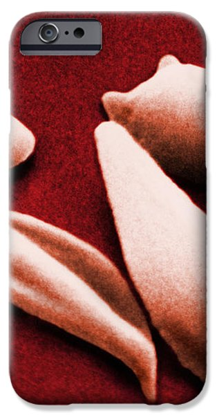 Sickle Red Blood Cells iPhone Case by Omikron