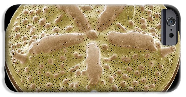 Alga iPhone Cases - Diatom, Sem iPhone Case by Steve Gschmeissner
