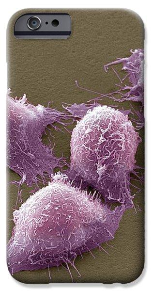 Cervical Cancer Cells, Sem iPhone Case by Steve Gschmeissner