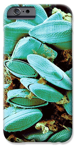 Phytoplankton iPhone Cases - Diatoms, Sem iPhone Case by Susumu Nishinaga