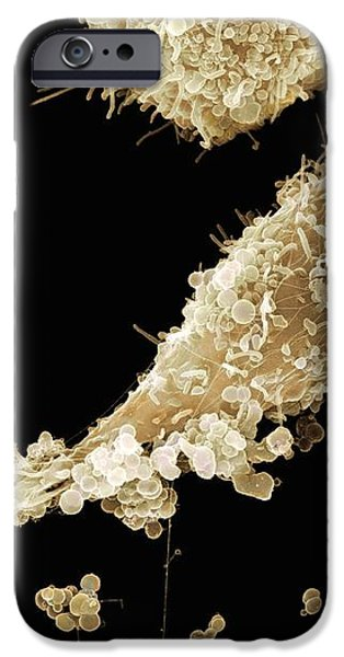 Epithelial Gonorrhoea Infection, Sem iPhone Case by