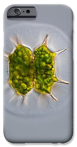 Green Alga, Light Micrograph iPhone Case by Gerd Guenther