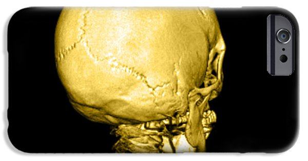 Medical Scan iPhone Cases - Human Skull iPhone Case by Medical Body Scans