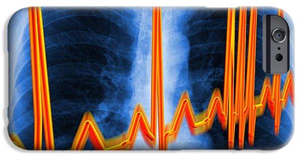 Irregular iPhone Cases - Irregular Heartbeat iPhone Case by Pasieka