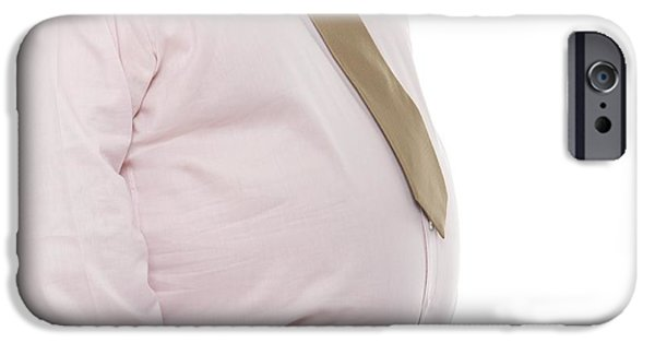 Button Down Shirt iPhone Cases - Overweight Man iPhone Case by