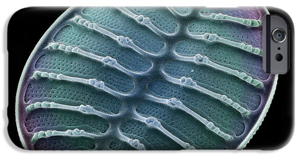 Diatom iPhone Cases - Diatom Alga, Sem iPhone Case by Steve Gschmeissner