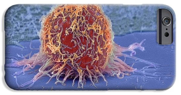 Disorder iPhone Cases - Cervical Cancer Cell, Sem iPhone Case by Steve Gschmeissner