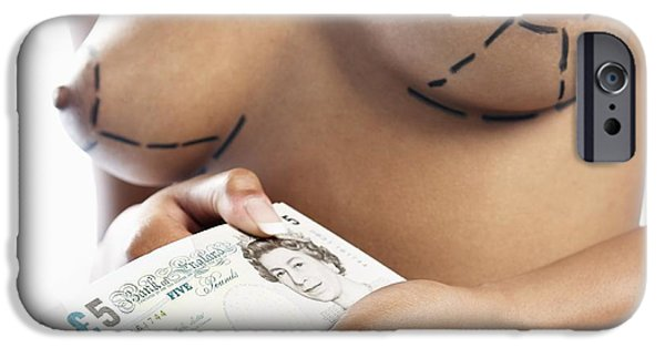 Ego iPhone Cases - Cosmetic Breast Surgery iPhone Case by Adam Gault