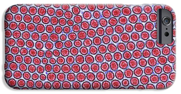 Microvillus iPhone Cases - Intestinal Microvilli, Tem iPhone Case by Steve Gschmeissner