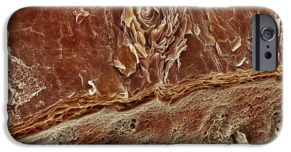 Sweat Pore iPhone Cases - Sweat Pore, Sem iPhone Case by Steve Gschmeissner
