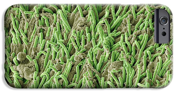 Scanning Electron Microscope Photographs iPhone Cases - Dental Plaque, Sem iPhone Case by Steve Gschmeissner
