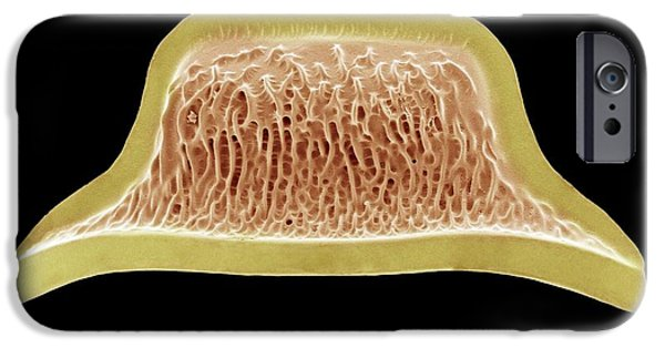 Diatoms iPhone Cases - Diatom, Sem iPhone Case by Steve Gschmeissner