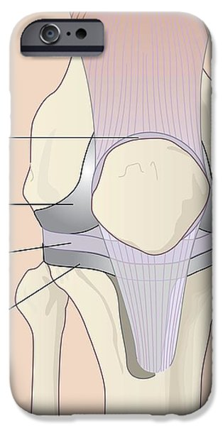 Knee Replacement, Artwork iPhone Case by Peter Gardiner