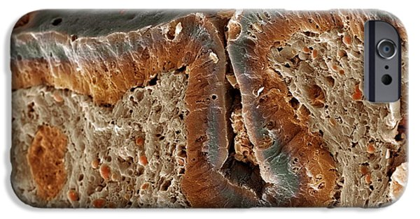 Recently Sold -  - Disorder iPhone Cases - Colon Cancer, Sem iPhone Case by Steve Gschmeissner