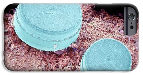 Alga iPhone Cases - Diatoms, Sem iPhone Case by Susumu Nishinaga