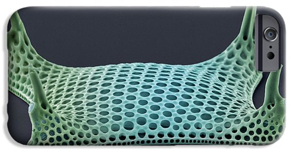 Phytoplankton iPhone Cases - Diatom, Sem iPhone Case by Steve Gschmeissner