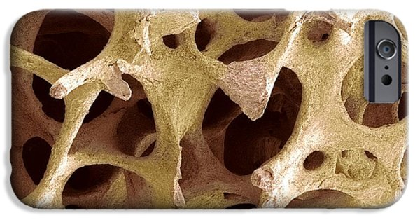 Scanning Electron Microscope Photographs iPhone Cases - Bone Tissue, Sem iPhone Case by Steve Gschmeissner