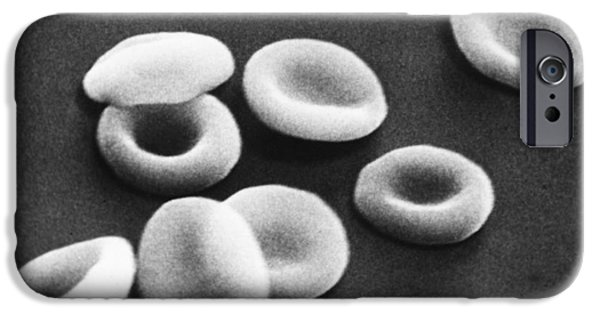 Hematology iPhone Cases - Red Blood Cells, Sem iPhone Case by Omikron