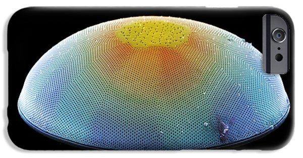 Diatom Photographs iPhone Cases - Diatom Alga, Sem iPhone Case by Steve Gschmeissner
