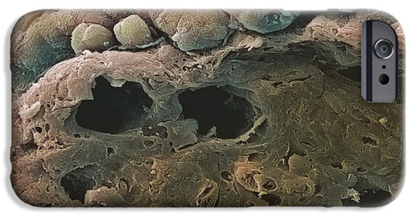 Mucosa iPhone Cases - Colon Cancer, Sem iPhone Case by Steve Gschmeissner