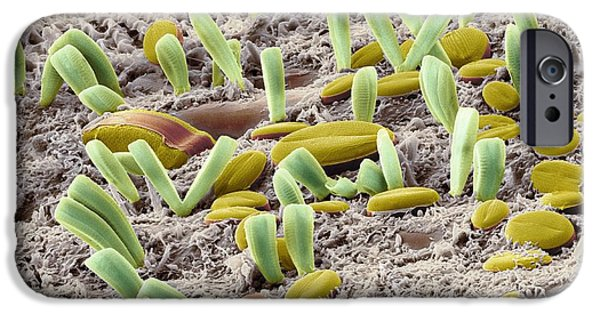 Phytoplankton iPhone Cases - Diatoms, Sem iPhone Case by Steve Gschmeissner