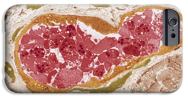 Disorder iPhone Cases - Abnormal Blood Clot, Tem iPhone Case by Steve Gschmeissnercarol Upton