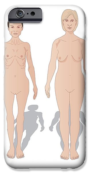 Eating Disorders iPhone Cases - Anorexia, Artwork iPhone Case by Peter Gardiner