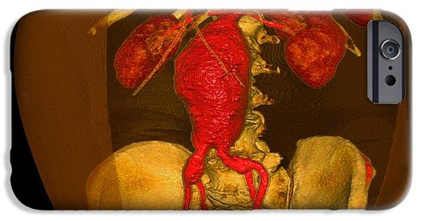 3-d iPhone Cases - Aortic Aneurysm, 3-d Ct Scan iPhone Case by Du Cane Medical Imaging Ltd