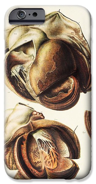 Disorder iPhone Cases - Aortic Aneurysm iPhone Case by Mehau Kulyk