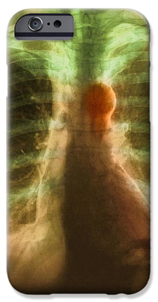 Aortic Aneurysm, X-ray iPhone Case by