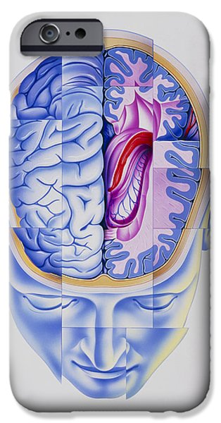 Multiple Personalities iPhone Cases - Art Of Abstract Head Showing Brain Limbic System iPhone Case by John Bavosi