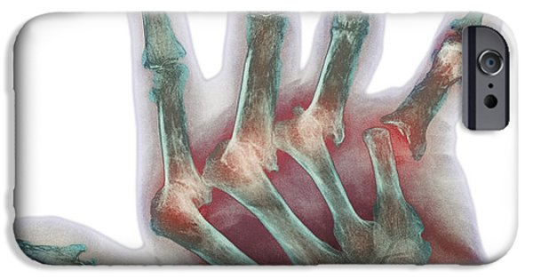 Disorder iPhone Cases - Arthritic Hand, X-ray iPhone Case by Cnri