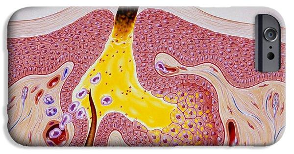 Disorder iPhone Cases - Artwork Of Acne, Showing Blackhead Development iPhone Case by John Bavosi