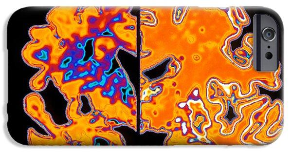 Disorder iPhone Cases - Artwork Of Alzheimers Diseased Brain Vs Normal iPhone Case by Pasieka