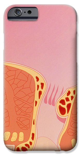 Disorder iPhone Cases - Artwork Of Internal And External Haemorrhoids iPhone Case by Peter Gardiner